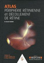 Atlas périphérie rétinienne et décollements de rétine