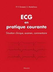 ECG en pratique courante