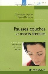 Fausses couches et morts foetales prise en charge des grossesses ult rieures v ronique - Fausse couche et travail ...