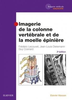 Imagerie de la colonne vertébrale et de la moelle épinière-elsevier / masson-9782294747236