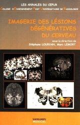 Imagerie des lésions dégénératives du cerveau