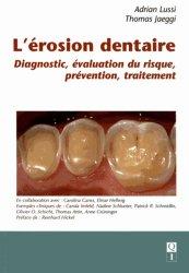 L'érosion dentaire