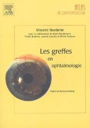 Les greffes en ophtalmologie