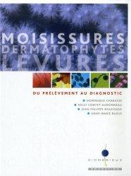 Moisissures dermatophytes levures