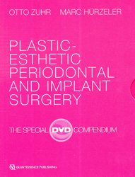 Plastic-esthetic periodontal and implant surgery