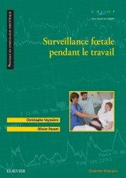 Surveillance foetale pendant le travail