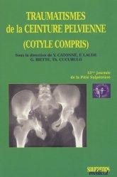 Traumatismes de la ceinture perlvienne (cotyle compris)