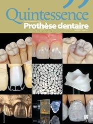 ABONNEMENT ETUDIANT : Revue Quintessence Prothèse dentaire