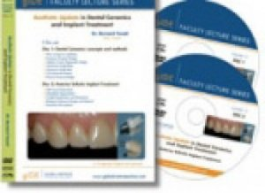 Aesthetic update in dental ceramics and implant treatment