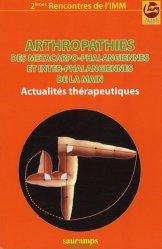 Arthropathies des métacarpo-phalangiennes et inter-phalangiennes de la main