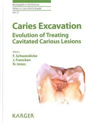 Caries Excavation: Evolution of Treating Cavitated Carious Lesions