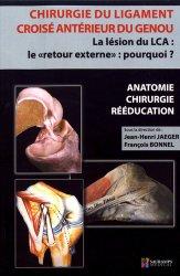 Chirurgie du ligament croisé antérieur