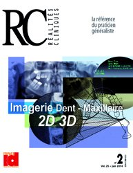 Imagerie Dent - Maxillaire 2D 3D