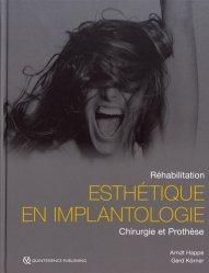 Implantologie en Secteur Esthétique