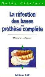 La réfection des bases en prothèse complète