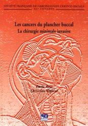 Les cancers du plancher buccal - La chirurgie minimale invasive