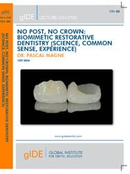 NO POST, NO CROWN: BIOMIMETIC RESTORATIVE DENTISTRY (SCIENCE, COMMON SENSE, EXPERIENCE)