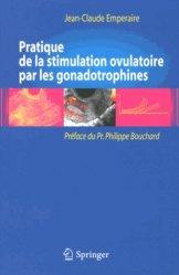 Pratique de la stimulation ovulatoire par les gonadotrophines