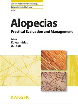 Alopecias-karger-9783318027747