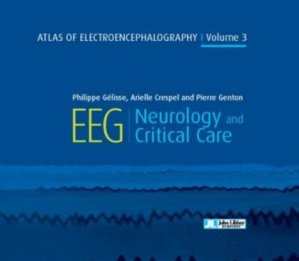 Atlas of electroencephalography - volume 3 - Neurology and critical care - john libbey eurotext - 9782742015795