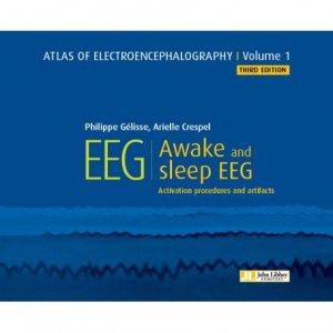 Atlas of electroencephalography - Tome 1, Awake and sleep eeg-john libbey eurotext-9782742015900