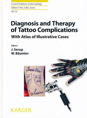 Diagnosis and Therapy of Tattoo Complications-karger -9783318059779