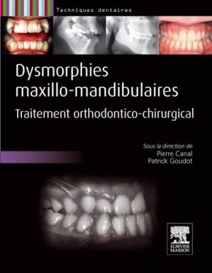 Dysmorphies maxillo-mandibulaires-elsevier / masson-9782294710070