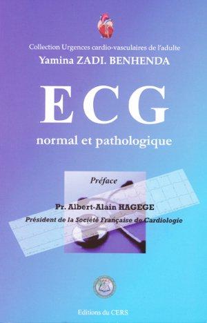 ECG normal et pathologique-du cers-2312953877300