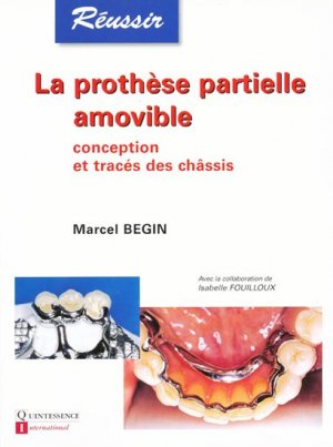 La prothèse partielle amovible - quintessence international - 9782912550347