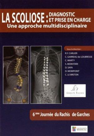 La scoliose : Diagnostic et prise en charge - Une approche multidisciplinaire - sauramps medical - 9791030300390