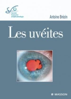 Les Uvéites-elsevier / masson-9782294711077