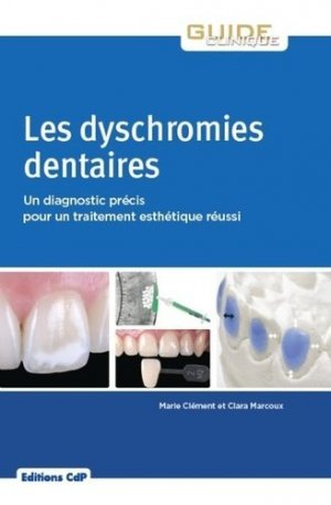 Les dyschromies dentaires-cdp-9782843614217