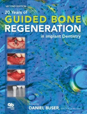 20 Years of Guided Bone Regeneration in Implant Dentistry - quintessence publishing - 9780867154016