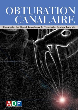 Obturation canalaire - association dentaire francaise - adf - 2224836311774