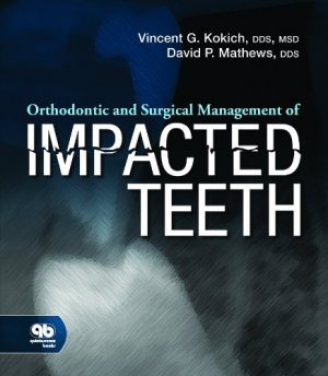 Orthodontic and Surgical Management of Impacted Teeth-quintessence publishing-9780867154450
