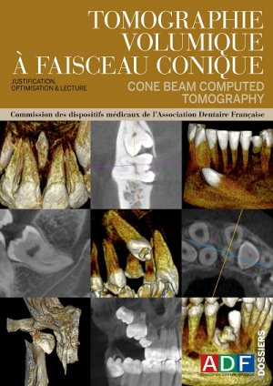 Tomographie volumique à faisceau conique-association dentaire francaise - adf-2224836316533