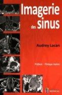 Imagerie des sinus