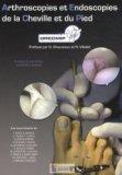 Arthroscopies et Endoscopies de la Cheville et du Pied