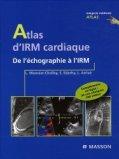 Atlas d'IRM cardiaque