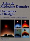 Couronnes et bridges