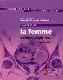 Imagerie de la femme : Gynécologie Tome 2