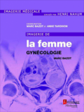 Imagerie de la femme : gyn�cologie