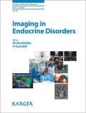 Imaging in Endocrine Disorders