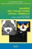 Imagerie des traumatismes cr�nio-c�r�braux