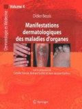 Manifestations dermatologiques des maladies d'organes Vol 4