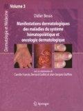 Manifestations dermatologiques des maladies du système hématopoïétique et oncologie dermatologique Volume 3