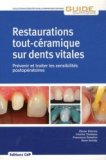 Restaurations tout-céramique sur dents vitales